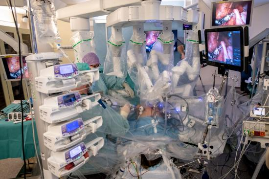 <span>Robotassisterad titthålskirurgi på nedsövd donator. Kvinnans lutade position gör livmodern mer åtkomlig. Robotarmarna arbetar via centimeterstora ingångshål i buken. En assisterande kirurg arbetar parallellt med ett klassiskt titthålsinstrument. </span>
